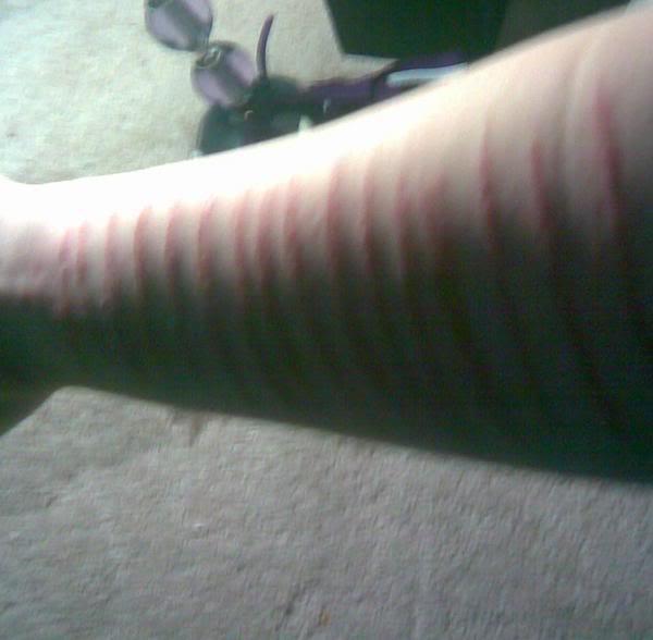 Celebrity wrist cuts emo