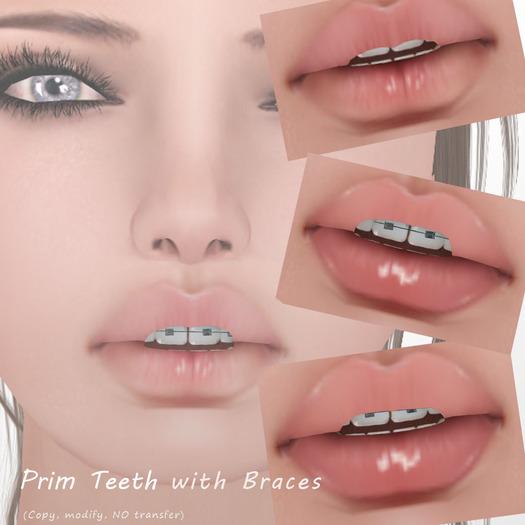 Braces Quotes: Dental Braces Quotes. QuotesGram