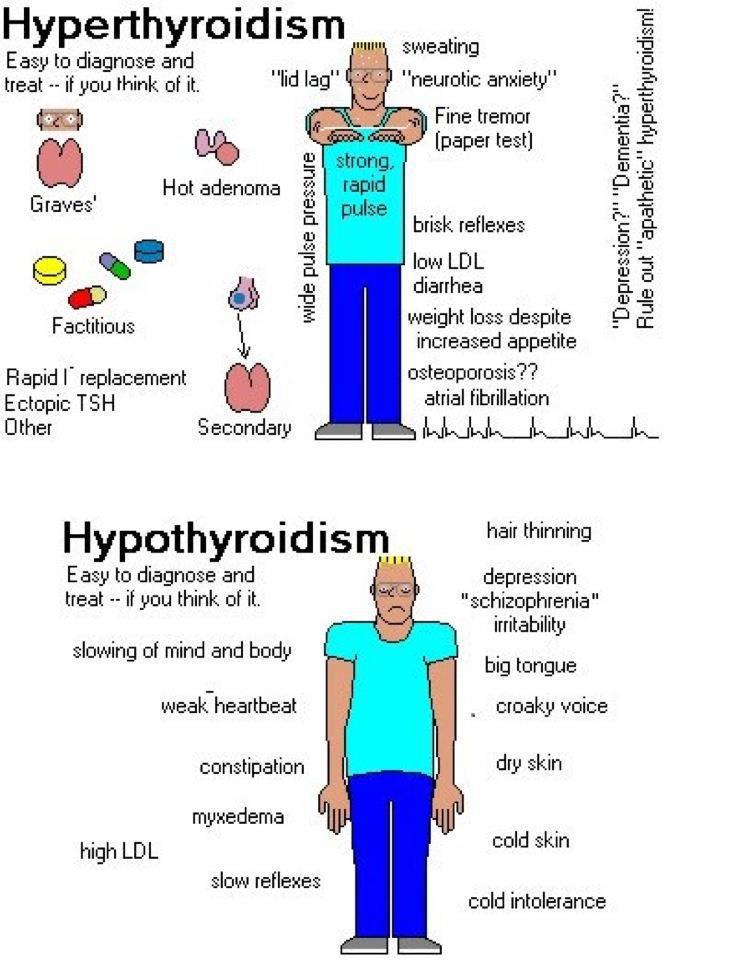 Hypothyroidism review article
