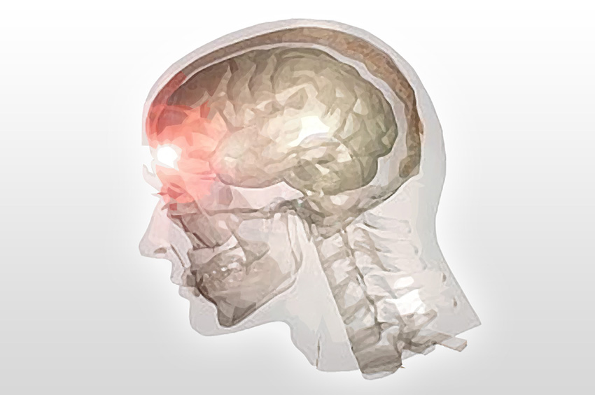 Traumatic Brain Injury Quotes: Quotes About Traumatic Brain Injury. QuotesGram