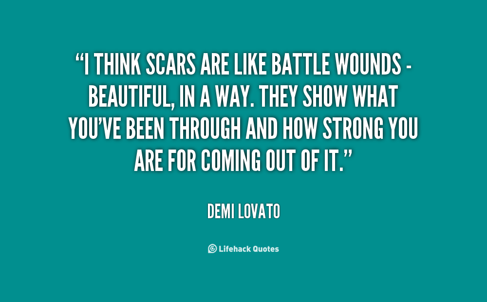 Scars Quotes. QuotesGram