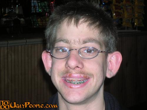 Pics ugly boys Ugly boy