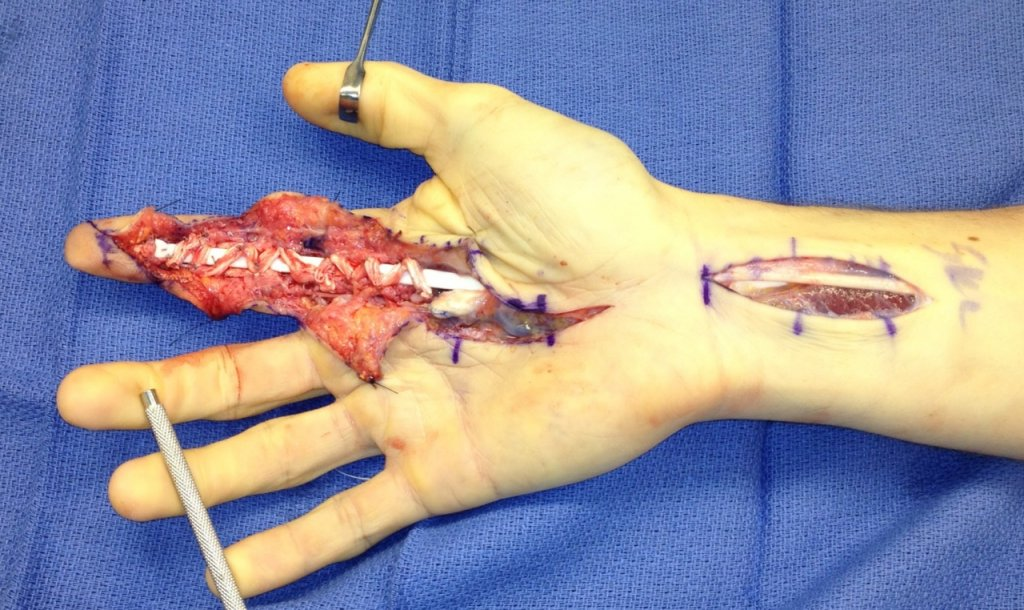 how to fix tendon damage in finger