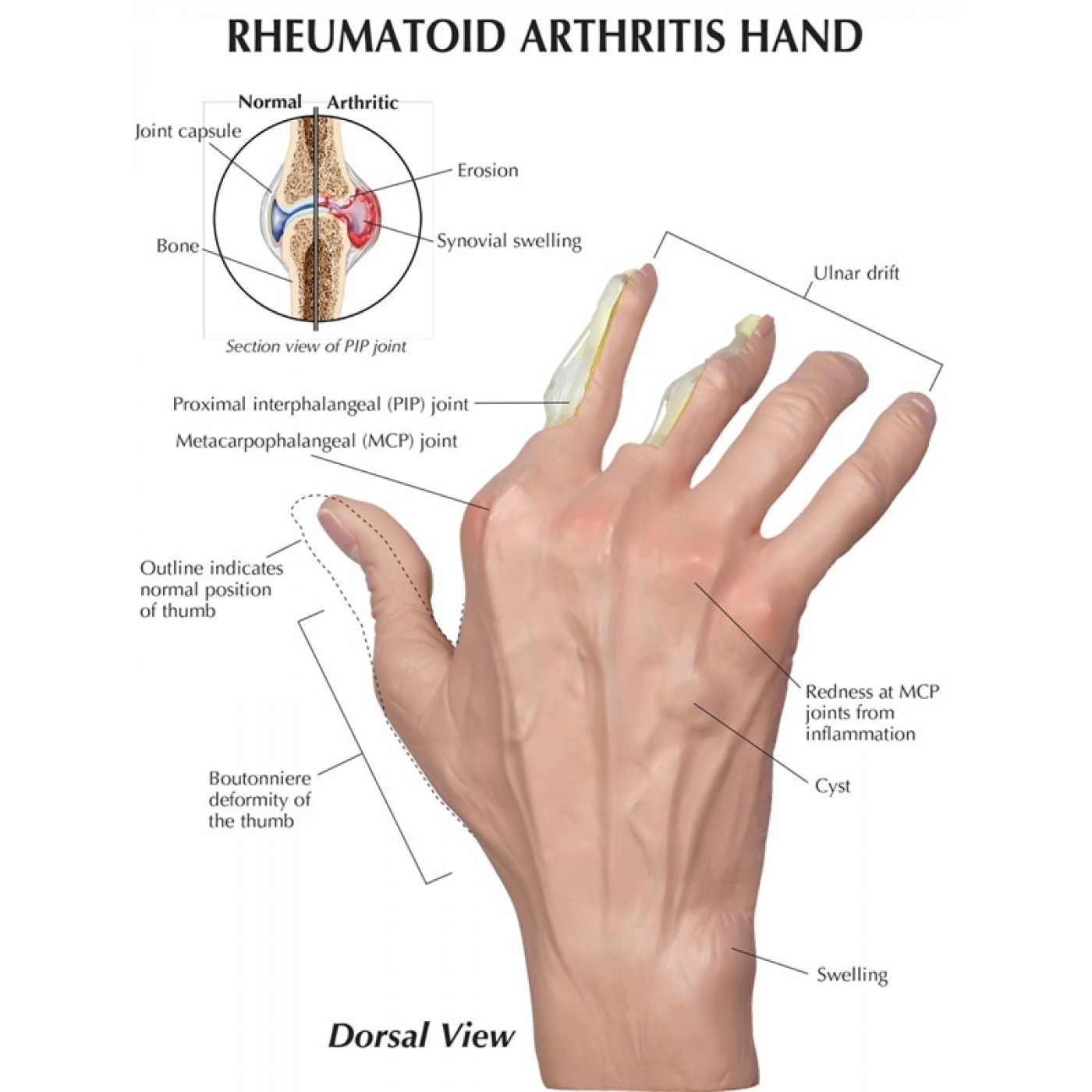 Sex positions and rheumatoid arthritis