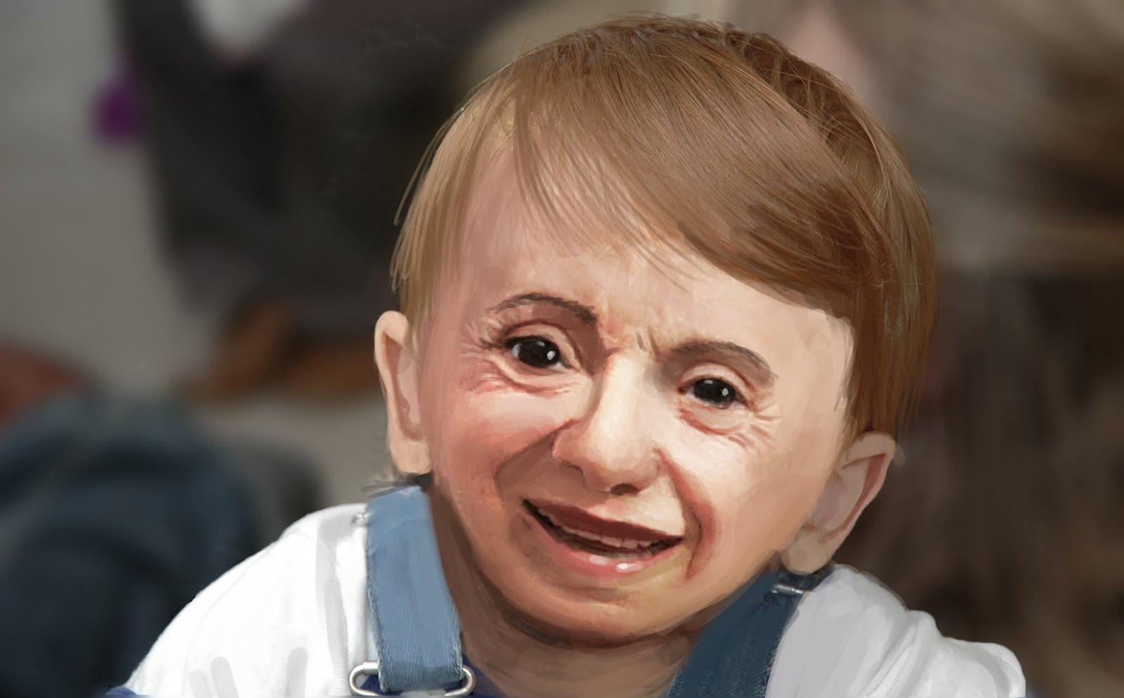deformed face kid - HD1600×994