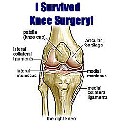 knee surgery quotes quotesgram