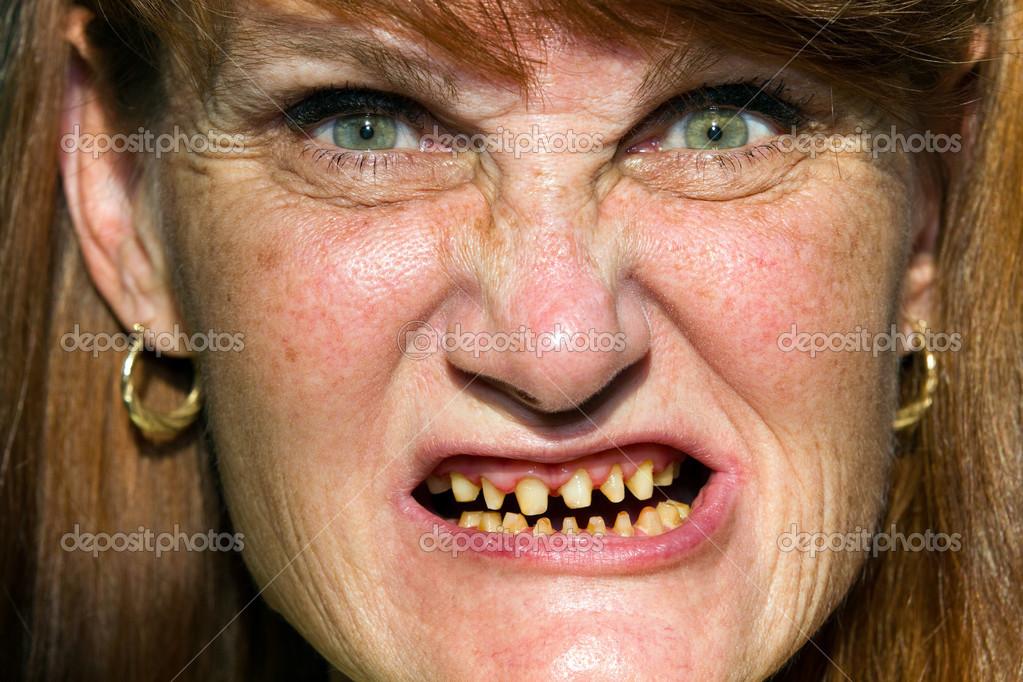 Если вам привидилось, что у вас отсутствуют зубы: вас постигнет утрата части имущества, возможно значительная.