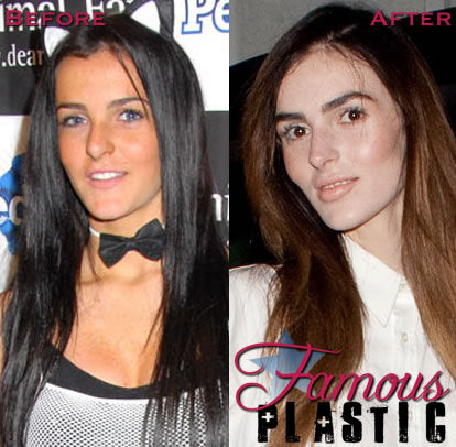 25 Celebrities Say How They Really Feel About Plastic Surgery