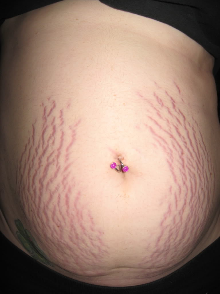 Is it normal for my stretch marks to