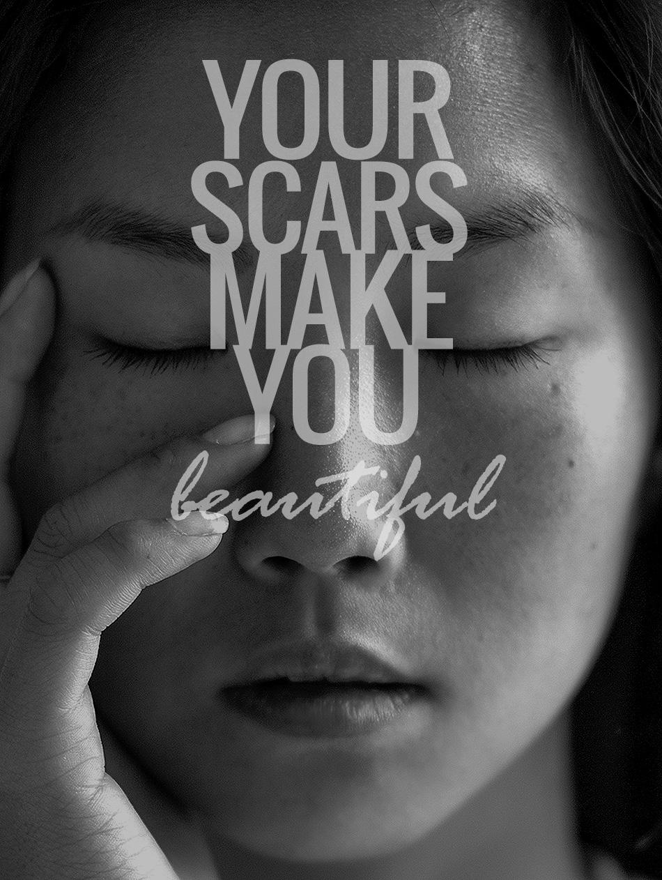 scars make us beautiful quotes  quotesgram