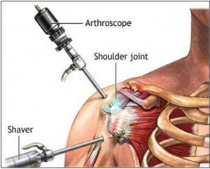 Shoulder Impingement Syndrome Surgery
