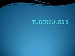 TUBERCULOSIS TUBERCULOSIS tuberculosis is on by mikeholy