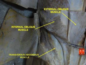 Abdominal External Oblique...