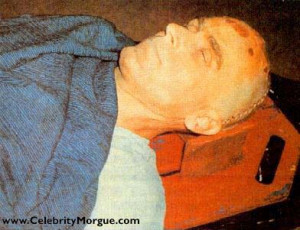58809d1245448073-ted-bundy-autopsy-pictures-ted-bundy-2.jpg