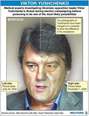 Chloracne Viktor Yushchenko Chloracne for many years,