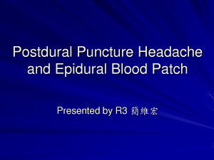 Epidural Blood Patch headache by mikeholy