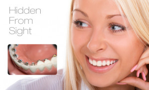 lingual braces hidden from sight lingual braces are a great aesthetic ...