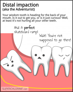 Distal impaction (aka the Adventurer). Your wisdom tooth is heading ...