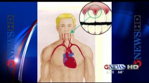 Dr. Is In: Heart Health & Dental Hygiene - KiiiTV.com South Texas ...