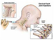 Facet Joint Injections Neck