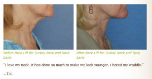 neck lift before after images