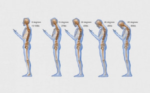 Smartphones cause drooping jowls and 'tech-neck' wrinkles in 18-39 ...