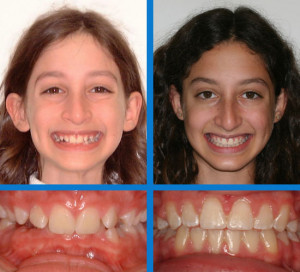 palate expander before and after