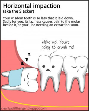 Symptoms of Impacted Wisdom Tooth that Needed to be Removed