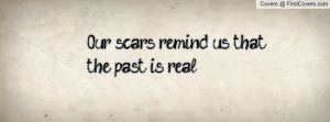 our_scars_remind_us-59445.jpg?i