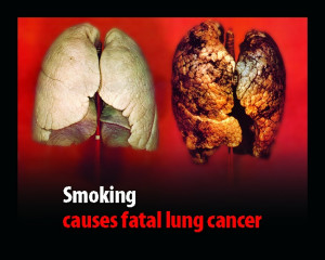 Lung cancer, the most common cause of cancer-related death in men and ...