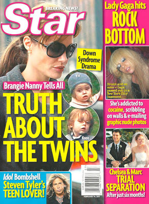 Do Brad Pitt and Angelina Jolie's Twins Have Down Syndrome?