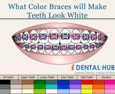 ... Braces, Choose Colors, Braces Face, Braces Colors, Braces 3