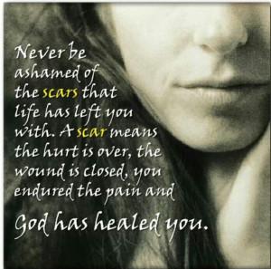 God's healing power.