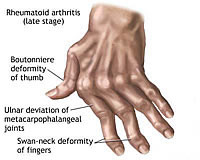 rheumatoid arthritis ra is an autoimmune disease that causes chronic ...