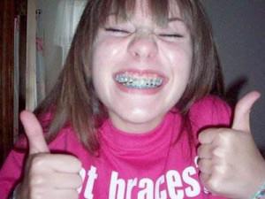 635506643639687993-1727466216_braces-awkward-girl-middle-school ...