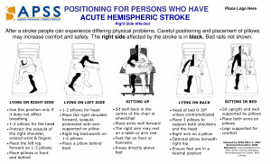 Bed Positioning for Stroke Patients