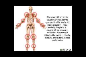About 'Rheumatoid arthritis'