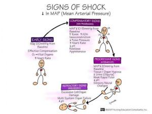Signs Of Shock Mean Arterial Pressure (MAP Shock)