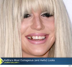 Quotables: Darling Ke$ha Reveals The Origins of Her Creepy Gold Tooth