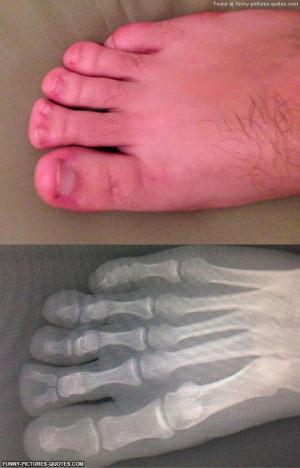 funny-feet-deformity-double-bone-toes-xray.jpg