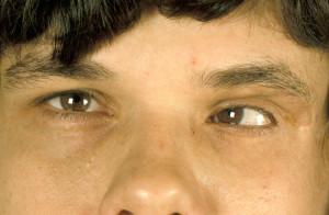 Neurofibromatosis Images