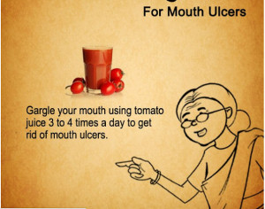 If you have trouble with mouth ulcers, and you want to get rid of them ...