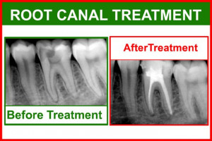What to do when a Cavity Start to Hurt