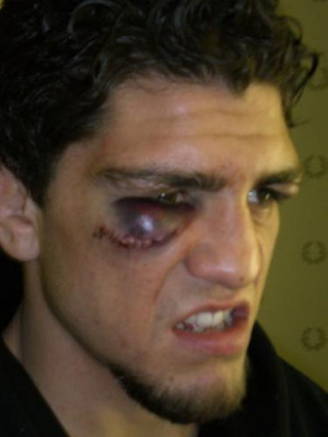 MMA Photo Tribute: 16 Seriously Messed-Up Eyes [UPDATED]
