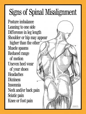 Signs of Spinal Misalignment Poster 18 quot X 24 quot Laminated or ...
