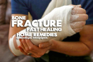 HOME REMEDIES FOR BONE FRACTURE - HEAL BROKEN BONE FASTER NATURALLY