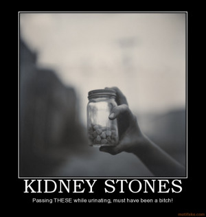 Thread: Kidney stones