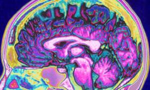 scan-of-the-human-brain-007.jpg