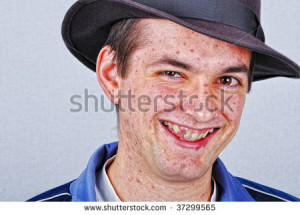 Young funny man with many acne on face smiling