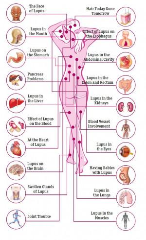 Lupus Vitamin D Council major overview Feb 2014, 17 references ...